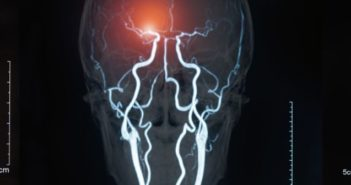 Funding boost for research into AI-based brain monitoring